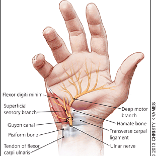 LIVE virtual course - The Ulnar Side of the Wrist Part 1: Surgical and Therapeutic Management of Pathology caused by trauma, sports or acute injury  Friday, June 4th