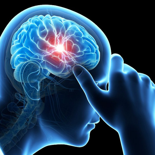 Treatment of Concussion & Post-Concussion Syndrome: Behavioral Strategies for Recovery - Online via ZOOM June 19th