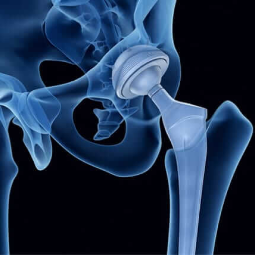 Advances in Hip and Knee Replacement Surgery & Multimodal Pain Management - September 16th@6pm Live via ZOOM